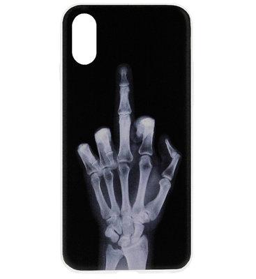 ADEL Siliconen Back Cover Softcase Hoesje voor iPhone XS/ X - Schedel Middelvinger